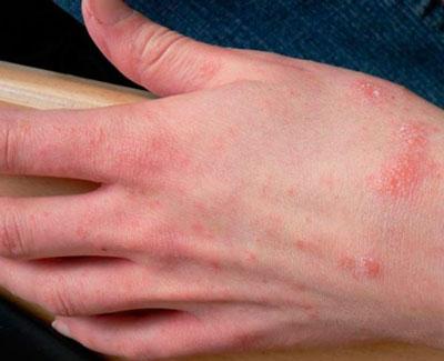 При каких заболеваниях появляются прыщики на руках