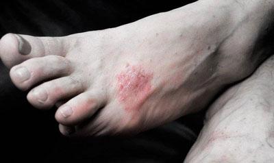 Когда сильно чешутся ступни ног