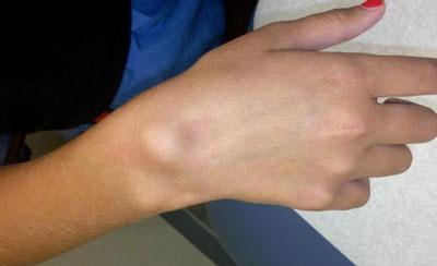 Причины возникновения гигромы на кисти руки