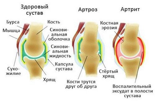 Почему появляется артроз и артрит суставов