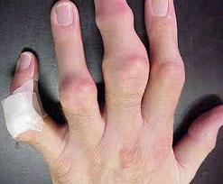 Пальцы при заболевании подагрой
