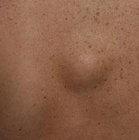 Появилась шишка под кожей на спине, что это?