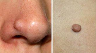Как выглядит фиброма под кожей