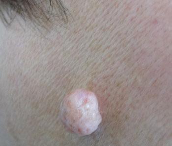 Фиброма кожи на лице