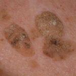Кератома — это доброкачественная опухоль кожи
