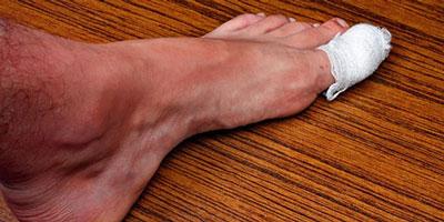 Методы избавления от нарыва на ноге