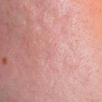 На фото бугристая кожа лица