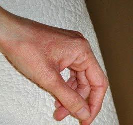 покраснение кожи и раздражение на руках чешется
