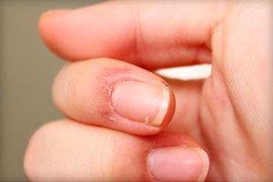 Почему сохнет и трескается кожа на пальцах рук около ногтей - способы избавления от пробелмы