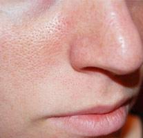 Как сузить поры на лице – косметические средства, процедуры.