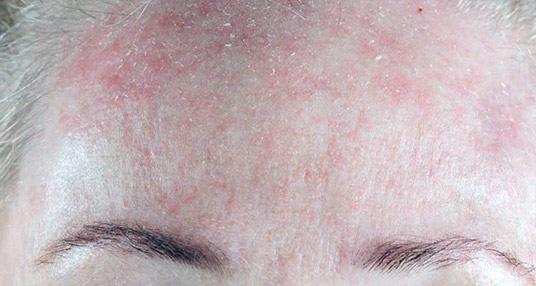 Обезвоживание кожи является главной причиной ее сухости и шелушения.