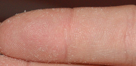 Проблема огрубения и шелушения кожи на пальцах рук