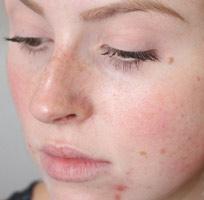 Средства, чтобы быстро убрать воспаления на коже лица.