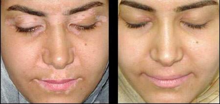 Белые пятна на лице могут быть признаком витилиго