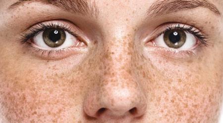 Веснушки - причина появления мелких коричневых пятен на коже лица