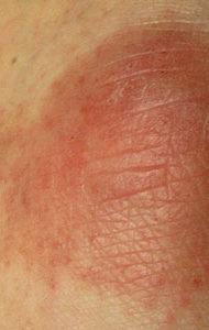 Почему образуются сухие шершавые красные пятна на коже