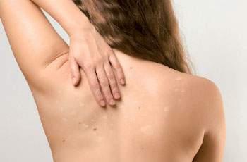 Белые пятна после загара свидетельствуют о недостаточной выработке меланина