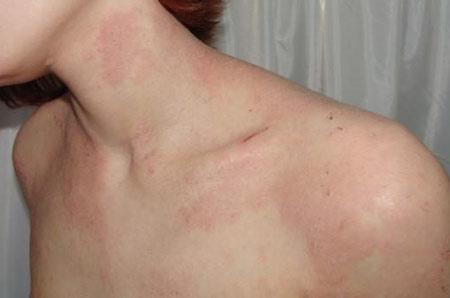 При дерматите красные пятна чешутся, увеличиваются в размерах и распространяются по всем телу.