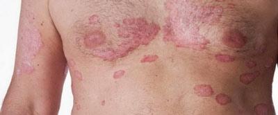 При псориазе красные пятна на теле выпуклые, часто образование покрывается сухой коркой, чешется.