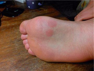 От чего возникают высыпания красного цвета на ступне ноги