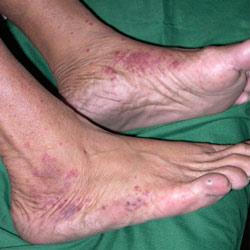 На стопе ноги появляются красные пятна, в следствии развития сахарного диабета