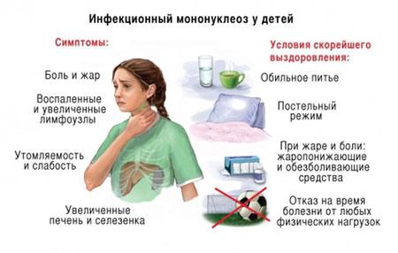 Симптомы при инфекционном мононуклеозе у детей и рекомендации по выздоровлению