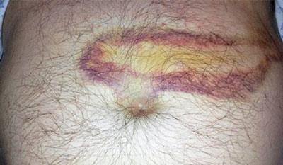 Пятна на коже при заболеваниях поджелудочной железы