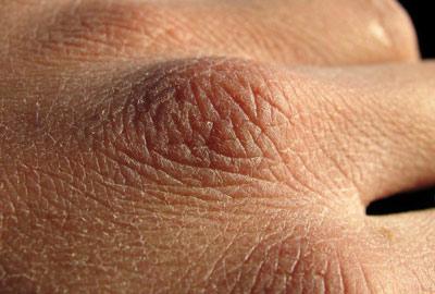 Каковы причины того, что сохнет кожа рук и что же делать в этом случае?