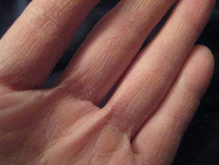 очему сохнет, облазит и трескается кожа на руках