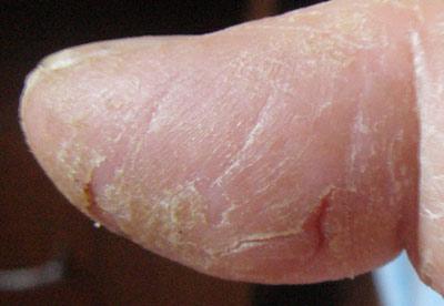 Что делать с потрескавшейся кожей на пальцах рук?