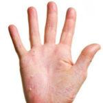 Почему кожные покровы на руках трескаются?