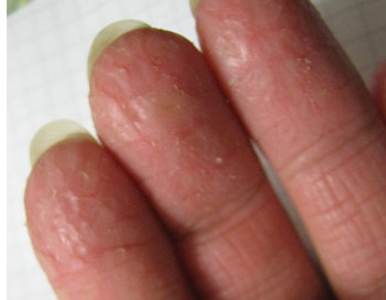 Что делать, если кожа на руках сохнет и трескается?