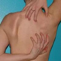 Чешется спина и плечи причины 6