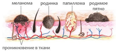 Что представляют собой образования на коже