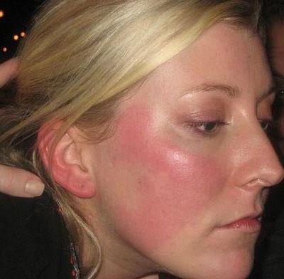 Какие заболевания являются причиной того, что лицо красное и горит