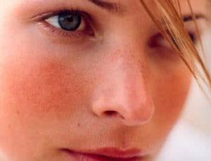 Физиологические и патологические причины красного лица