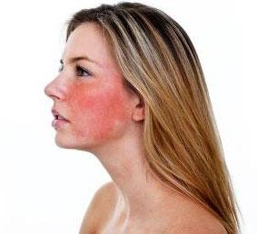 Красное лицо – признак какого заболевания