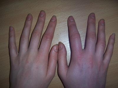 Почему могут опухать и чесаться руки