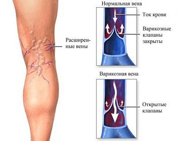 При варикозе чешется под коленками на сгибах с внутренней стороны