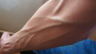 Что нужно делать, когда сильно видны вены на руках