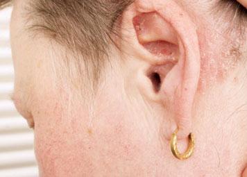 Зудящие ощущения в ушных раковинах