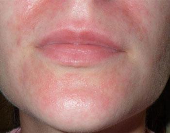 Дерматит, возникающий в области рта и подбородка