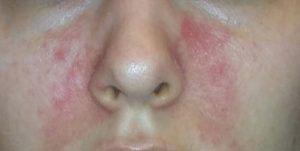 Причины и лечение покраснения вокруг носа