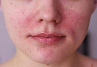 Покраснения вокруг носа и шелушение при дерматите