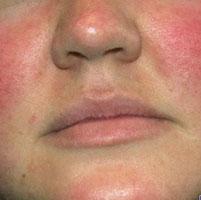 Причины красного носа и кожи вокруг него