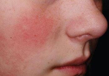 Красные пятна в области вокруг носа