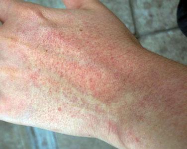 Сыпь на руках в виде красных точек у взрослого