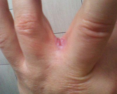 Причины возникновения сухости и шелушения между пальцами рук