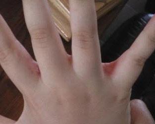 Причины покраснения между пальцами рук