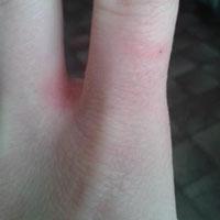 Как лечить покраснение и зуд между пальцами рук